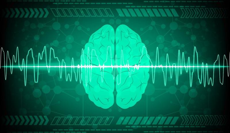 The Siesta Group Measuring Sleep and Brain Activity
